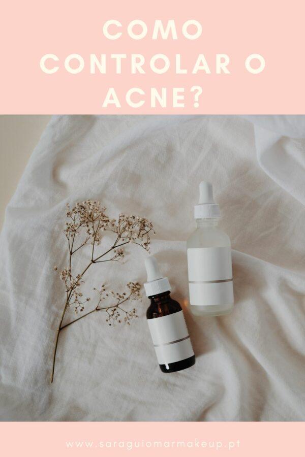 Como controlar o acne?