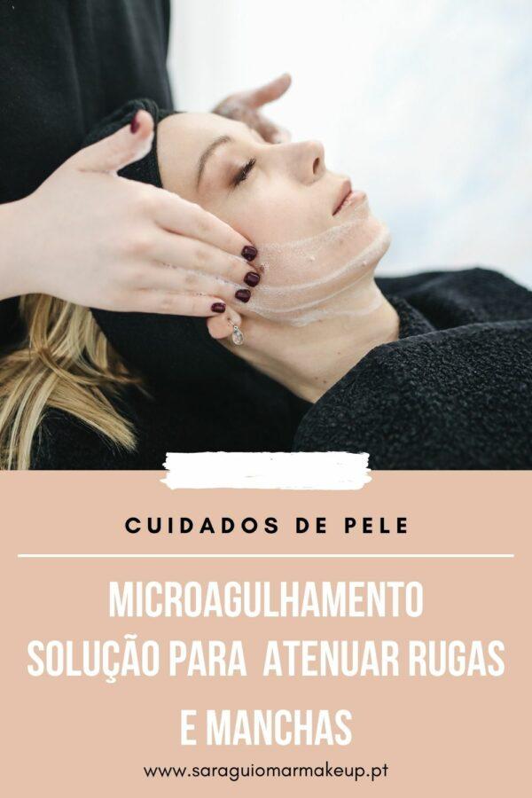 Microagulhamento: Como atenuar rugas e manchas?